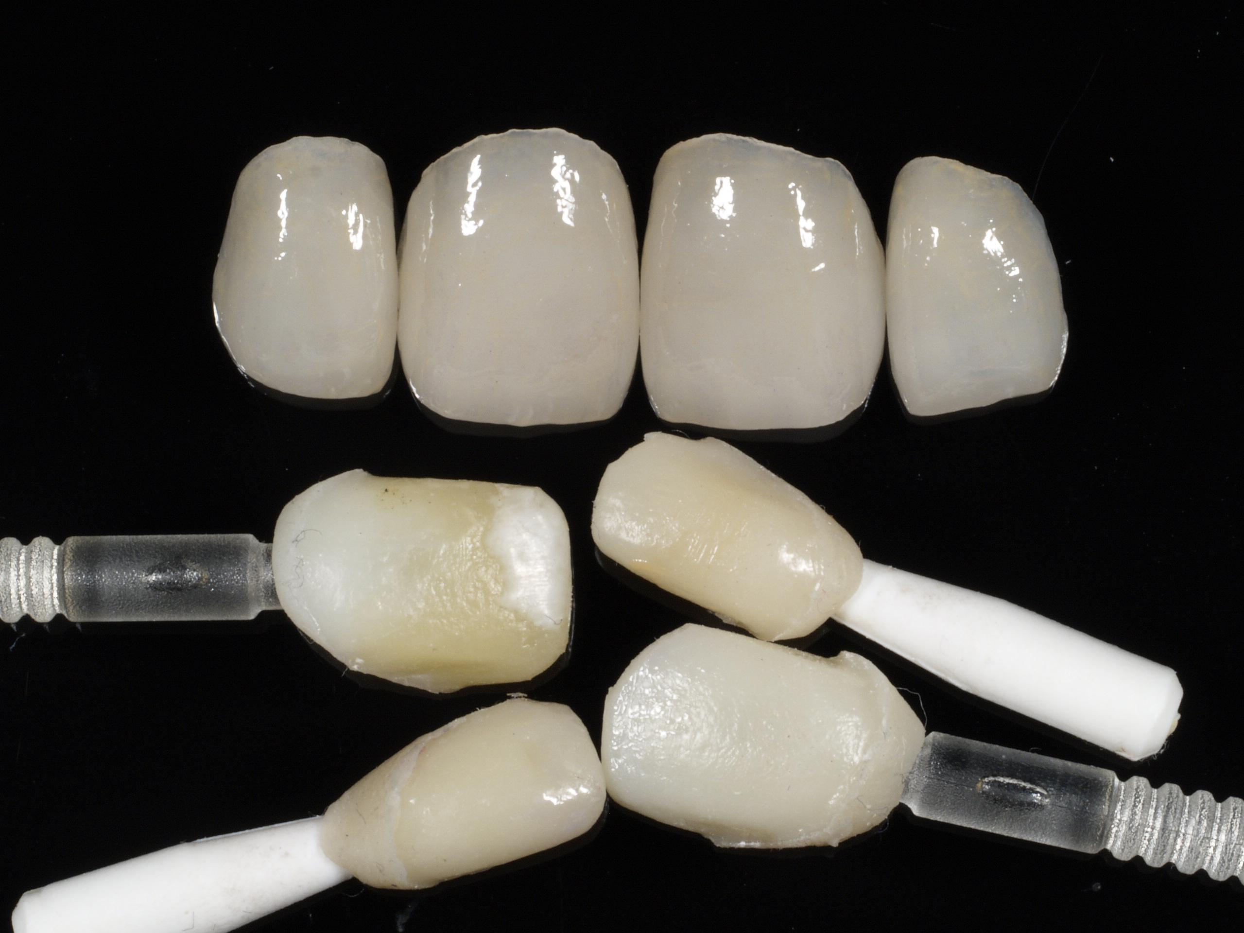 Veneers und kopierte, leicht beschliffene Zähne